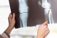 Hari Osteoporosis Sedunia, Bagaimana Cara Mencegah Tulang Rapuh dan Patah?