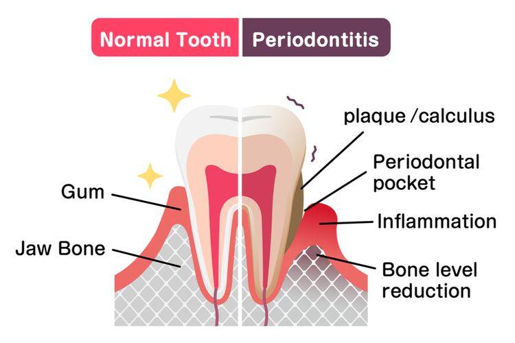 ilustrasi periodontitis