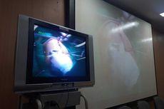 Bayi Kembar Siam Asal Kendari Aqila-Azila Berhasil Dipisahkan