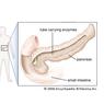 Gejala Pankreatitis (Radang Pankreas) yang Perlu Diwaspadai