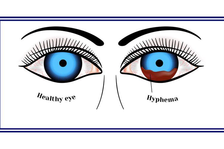 Ilustrasi hifema