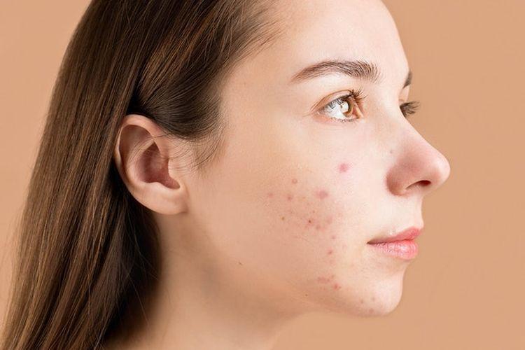 Produk untuk mengatasi masalah kulit, seperti masalah jerawat, termasuk ke dalam rutinitas skincare untuk remaja yang penting untuk diperhatikan.