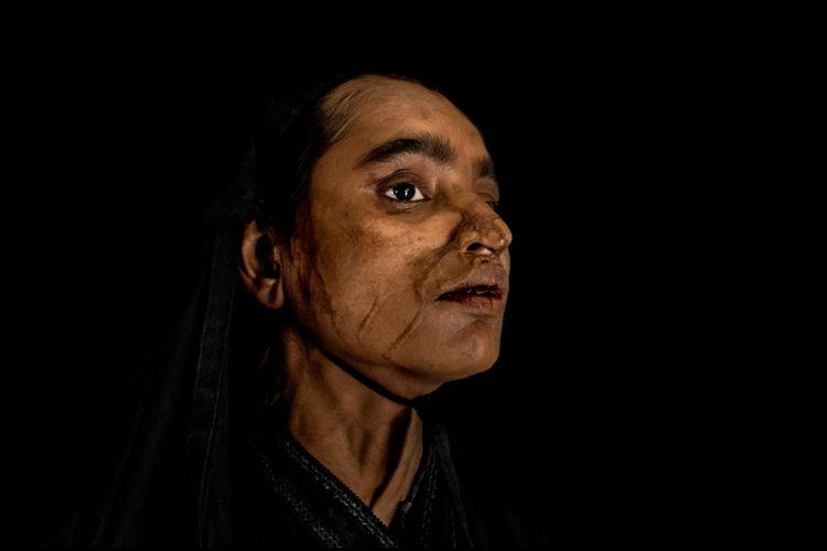 Seorang perempuan Bangladesh korban siraman air keras.