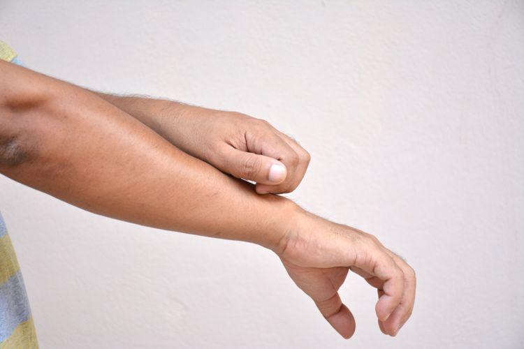 Ilustrasi dermatitis atopik, gatal, ruam