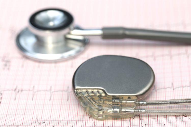 Ilustrasi alat pacu jantung dan stetoskop. Penemuan alat pacu jantung pertama oleh John Hopps, telah menyelamatkan ratusan ribu orang di seluruh dunia.