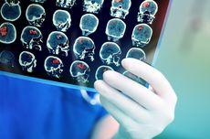Apa Penyebab Terjadinya Tumor Otak?