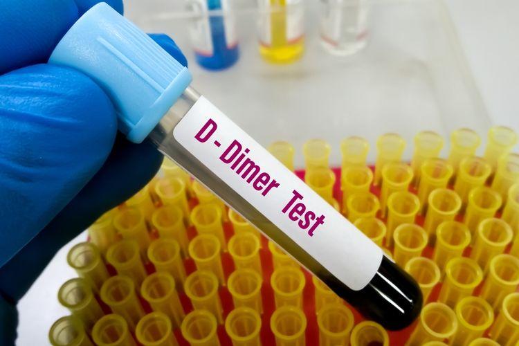 Tes D-dimer berguna untuk mengetahui abnormalitas pembentukan bekuan darah