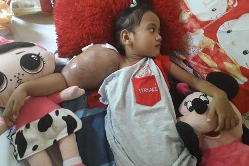 Kisah Pilu Bocah Syafa Idap Kanker Tulang, Hidup dengan Benjolan Sebesar Kepala di Lengan