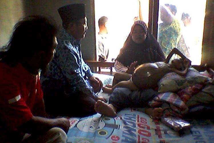 Anggi Indayati Terisma (3,5), penderita tumor pada kandung kemih di Karangsari, Kecamatan Pengasih, Kulon Progo, Daerah Istimewa Yogyakarta.