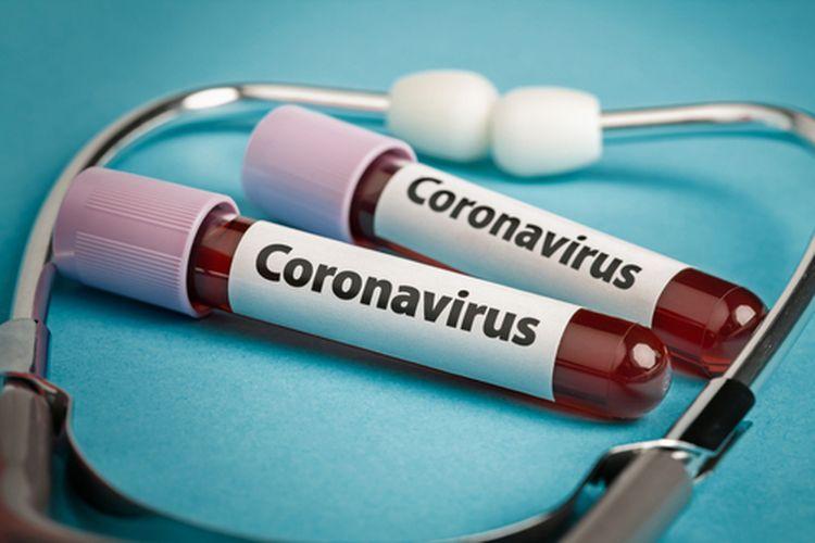 China menemukan salah satu cara menyembuhkan infeksi virus corona, yakni dengan plasma darah bekas penderitanya
