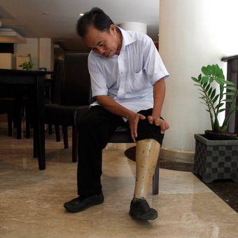 Wempie Kaunang (59), Orang Yang Pernah Mengalami Kusta, menunjukkan kaki palsu yang digunakannya. Wen telah dinyatakan sembuh dari kusta.