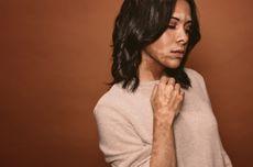 4 Gejala Vitiligo, Penyakit Memudarnya Warna Kulit yang Perlu Dikenali