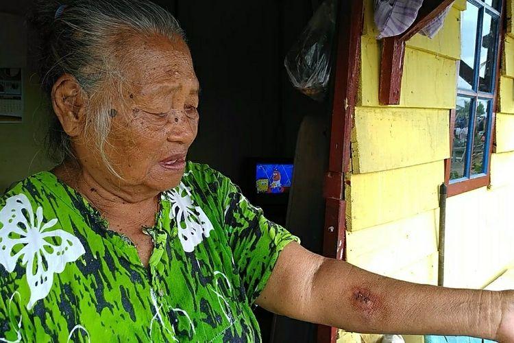 Tumini (72) menunjukkan luka di tangan kirinya yang digigit monyet sekitar sebulan yang lalu. Monyet itu sebelumnya telah berkeliaran di sekitar pemukiman dan menyerangnya tiba-tiba.