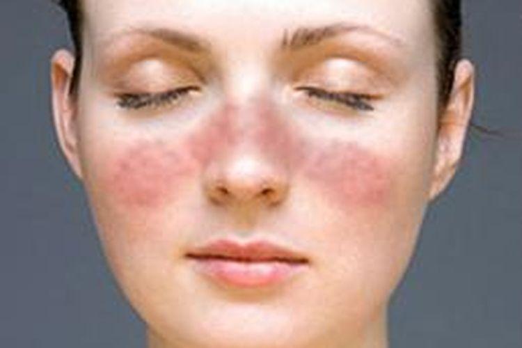 Ilustrasi gejala lupus