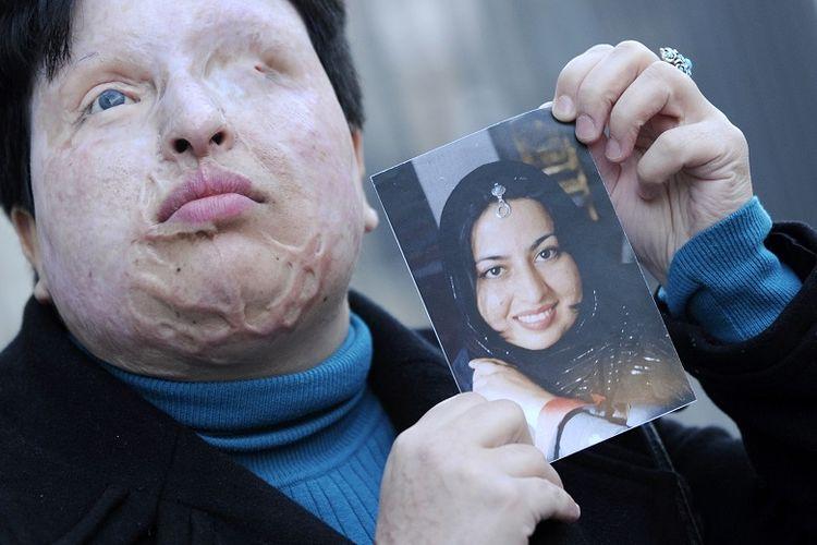 Ameneh Bahrami dari Iran berpose pada 5 Maret 2009 di Barcelona memegang foto dirinya sebelum dia dibutakan oleh seorang pria yang melemparkan air keras ke wajahnya.    AFP PHOTO LLUIS GENE. (Photo by LLUIS GENE / AFP)