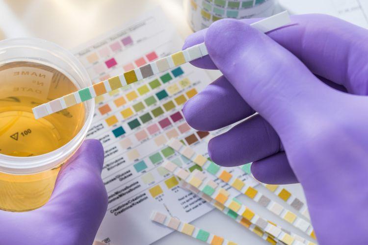 Ilustrasi warna urine