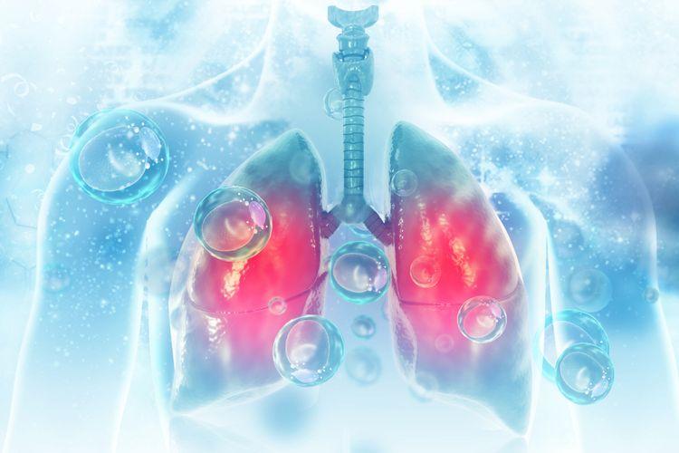 Ilustrasi CT scan dada tunjukkan pneumonia, virus corona penyebab Covid-19.