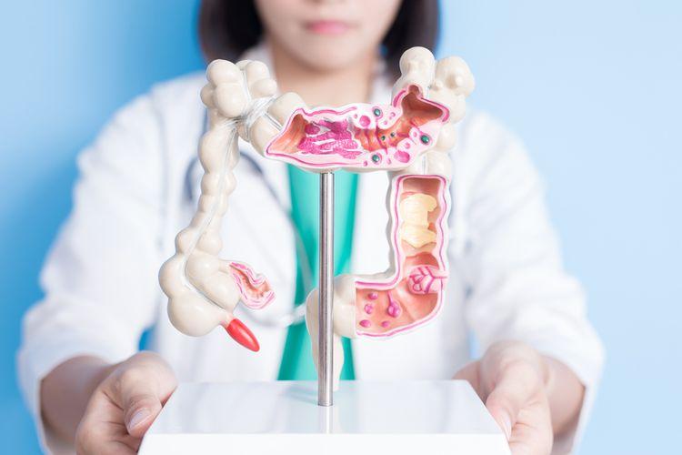 Ilustrasi kanker usus besar atau kanker kolorektal. Jenis kanker mematikan ketiga di Indonesia. Ada banyak faktor risiko penyebab kanker ini, seperti kebiasaan konsumsi daging merah hingga obesitas.