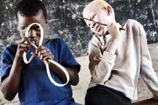 Warga Albino Diburu dan Dibantai, Organnya Diambil untuk Ilmu Sihir