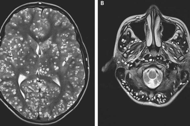 Kista penyebab kerusakan terlihat pada pemindaian MRI pada korteks serebral dan batang otak pasien.