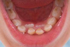 Tips Merawat Gigi dan Mulut Anak dari Pakar Unpad