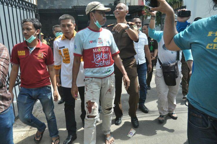 Salah satu korban luka akibat ledakan di halaman kantor Kejari Makassar saat pemusnahan barang bukti,  Rabu (11/4/2018).