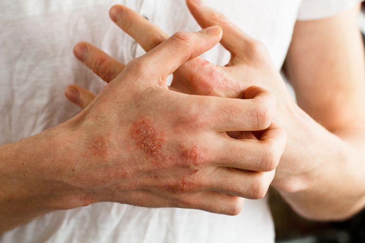Eksim adalah kondisi yang menyebabkan kulit meradang, iritasi, dan gatal.