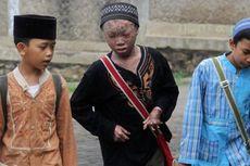 Ari Wibowo, Remaja di Tangsel dengan Kulit seperti Ular