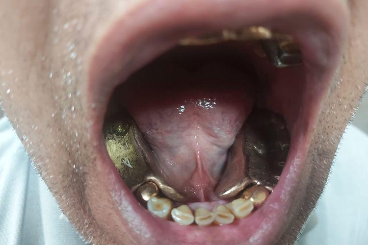 Petugas menangkapnya karena diduga mencoba menyelundupkan 95 gram emas di gigi.
