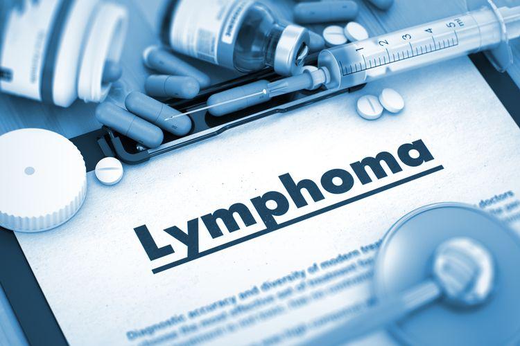 Ilustrasi kanker limfoma