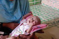 Derita Habib, Bayi 6 Bulan Alami Penyempitan Tenggorokan, Makan Disuntikkan Lewat Perut