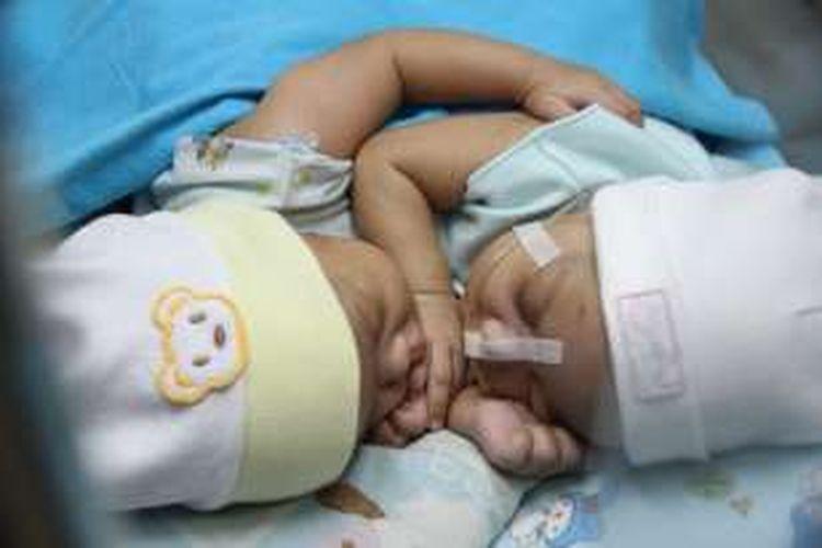 Bayi kembar siam dempet asal Ciamis saat terbaring di ruang NICU Rumah Sakit Hasan Sadikin (RSHS) Bandung, Jum'at (9/9/2016). Foto: Dokumentasi Humas RSHS