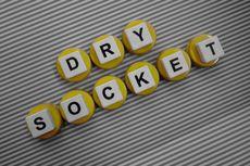 Dry Socket