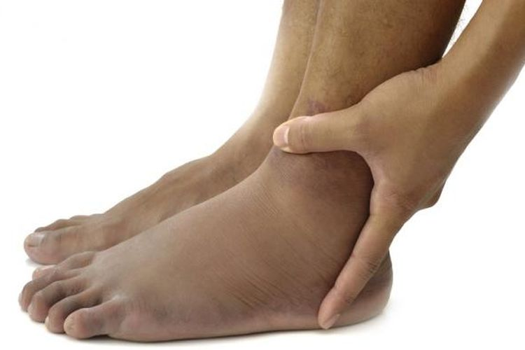 Ilustrasi kaki bengkak akibat asam urat.