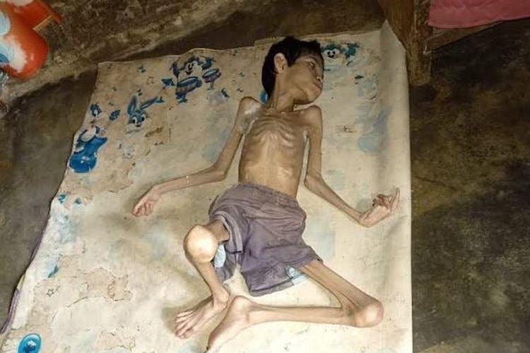 Supriadi (24) terbaring di rumahnya Desa Purwodadi, Kecamatan Badar, Kabupaten Aceh Tenggara, Senin (17/2/2020).
