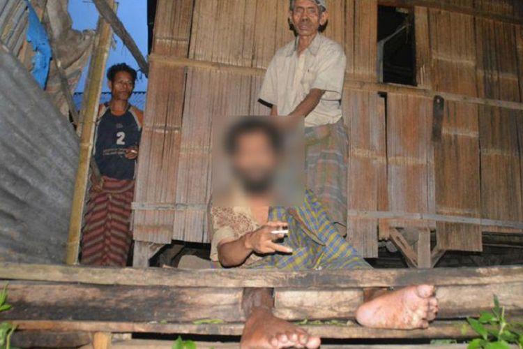 Wensesius Badik (41), orang dengan gangguan jiwa (ODGJ), didampingi ayahnya, Silvanus Sair (75), yang dipasung di belakang dapur rumah mereka di Kampung Puncak Weong, Desa Rana Gapang, Kecamatan Elar, Kabupaten Manggarai Timur, Flores, NTT, Rabu (31/1/2018). Badik sudah dipasung selama enam tahun.