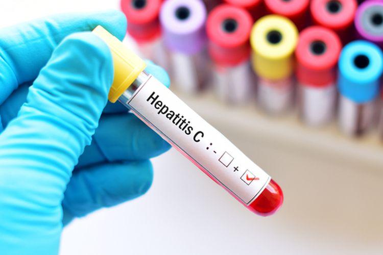 Ilustrasi hepatitis.