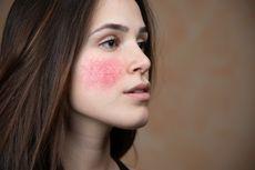 Kenali Tanda Awal Infeksi Kulit akibat Kosmetik Bermerkuri