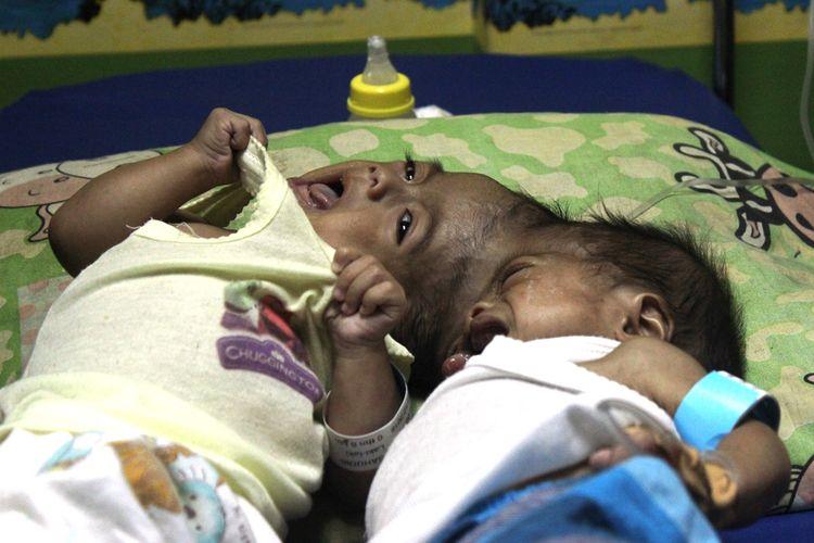 Fadlan dan Fadli, 8 bulan, bayi kembar siam dempet kepala asa Cianjur, Jawa Barat tengah menjalani perawatan di IGD RSUD Sayang, Cianjur