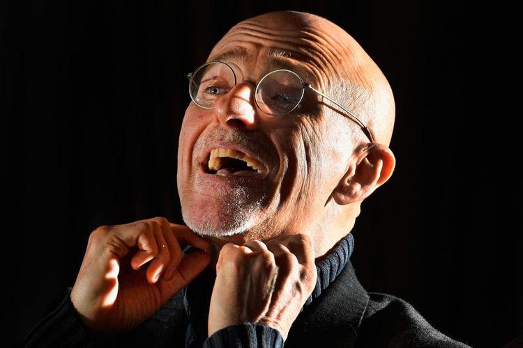 Sergio Canavero yakin transplantasi kepala pada manusia yang akan dilakukannya akan berhasil.