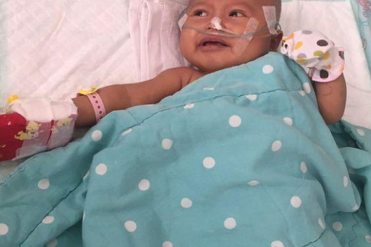 Alula Syffa Hinta, bayi umur tiga bulan asal Karawang yang menderita Atresia Bilier. Alula harus menjalani tranplantasi hati dengan biaya Rp 2 miliar.