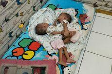 Rahman dan Rahim, Bayi Kembar Siam di Bekasi Meninggal Jelang Operasi Pemisahan