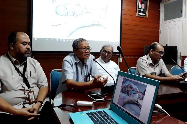 Tim dokter RSUPHAM Medan menjelaskan operasi pemisahan yang akan dijalani bayi kembar siam Adam dan Malik pada Selasa (23/7/2019)