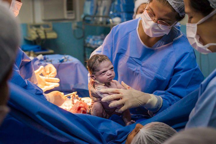 Isabela Pereira de Jesus, bayi yang terlahir cemberut dan jadi sensasi di internet dengan nama Baby Grumpy.
