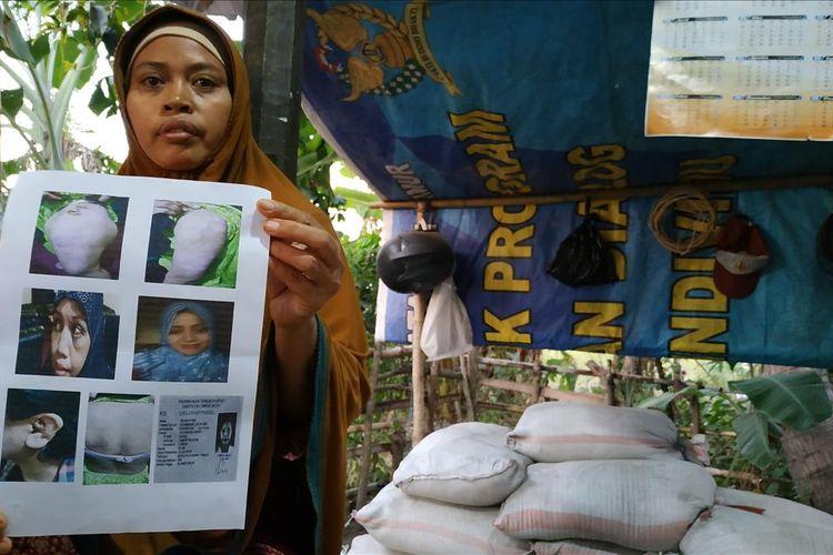 ibunda Sri Wahyuni, Nurasiah, Sabtu (27/7/2019) menunjukkan foto bekas penyiksaan yang dialami putrinya selama bekerja di Riyadh Arab Saudi, berharap Sri segera dipulangkan ke Lombok.