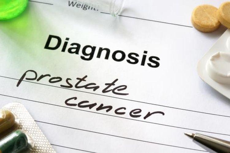 Ilustrasi kanker prostat.