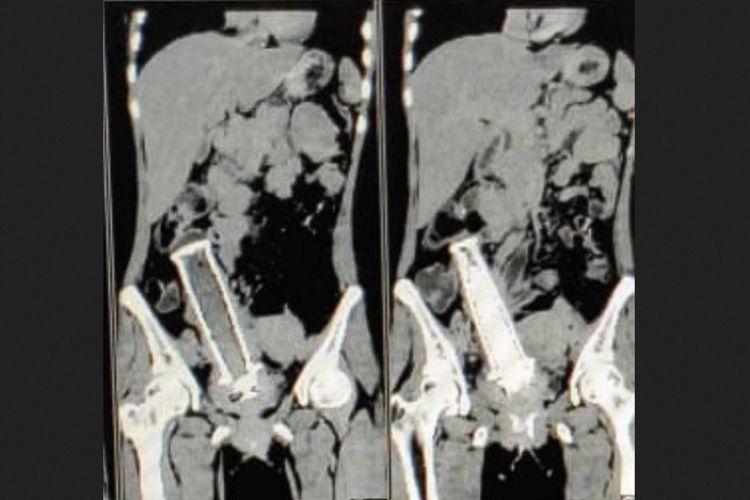 Hasil foto sinar-x yang menunjukkan ada benda asing menyerupai pegangan sepeda motor dalam rahim seorang wanita India.
