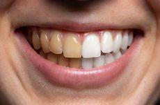7 Cara Memutihkan Gigi Kuning secara Alami