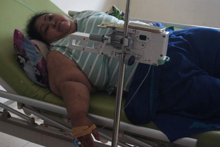 Sunarti (39), penderita obesitas tengah menjalani perawatan di RSUD Karawang, Kamis (31/1/2019).