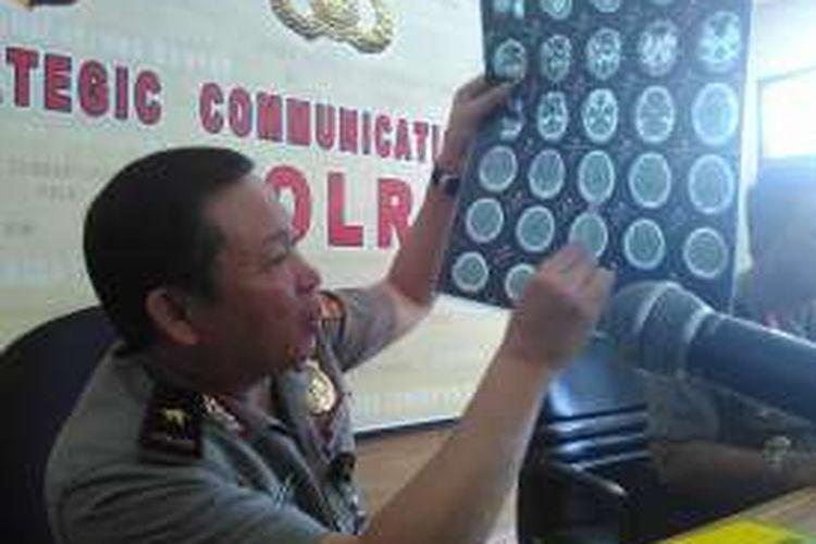 Kepala Pusat Kedokteran dan Kesehatan (Pusdokkes) Polri Brigjen Pol Arthur Tampi menunjukan hasil visum kepala terduga teroris Siyono di Mabes Polri, Jakarta, Selasa (5/4/2016)